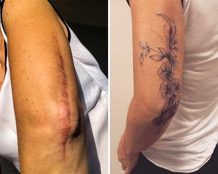 50 Geniaux Tatouages De Cicatrices Ou De Marques De Naissance 2tout2rien Tatuagem Para Cobrir Cicatrizes Tatuagem Sobre Cicatriz Tatuagem De Cobra