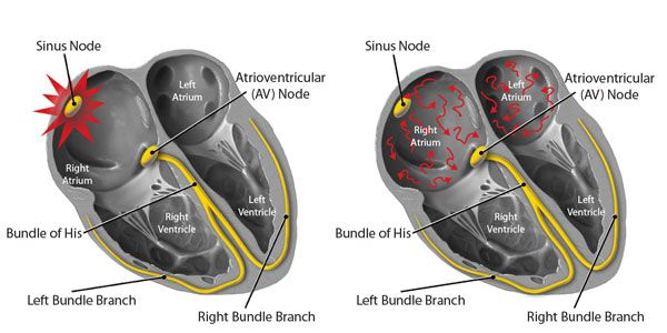 During normal sinus rhythm (NSR), the cardiac impulse originates in the sinus node in the atria and spreads through the atrioventricular node to the bundle branches in the ventricles (left). During atrial fibrillation, millions of wandering wavelets randomly migrate through the atria, producing an irregular heartbeat (right). (Infographic c/o Capital Cardiology)