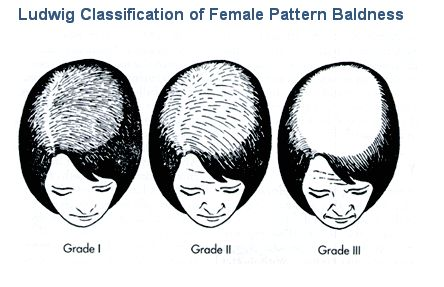As many researchers have proved that main cause of pattern hair loss are the genetic reasons which get transfer from parents to child and after specific age person starting losing his hair. but there is great myth among the people that this genetic hair loss come from the from father but it is not at all true as these hair loss genes can be inherited from either side of the family. Even if your paternal or maternal uncle is bald even then you can face this problem of hair loss.