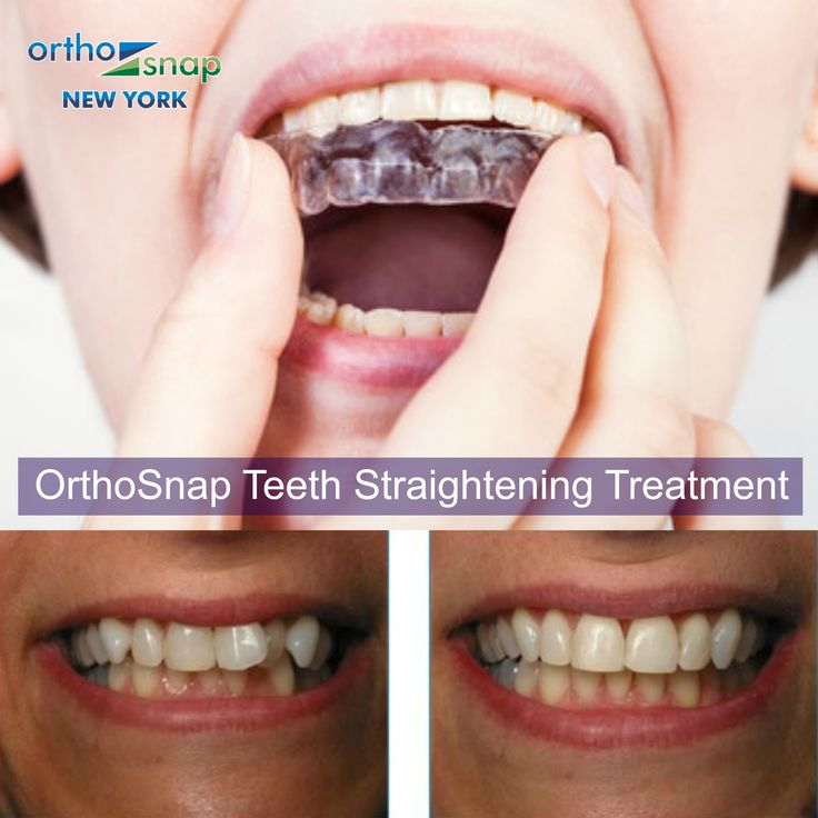 Clear teeth aligners OrthoSnap - as effective as traditional braces, inviisible, removable, convenient. OrthoSnap New York. Manhattan & Brooklyn.1.844.678.4676 www.OrthoSnapNY.com #clearbraces #invisiblebraces #adultbraces #straightteeth #teethstraightening #invisalign #braces #crookedteeth #smile #teeth #newyork #newyorkcity #manhattan #correctcrookedteeth #brooklyn #beautifulsmile #newyorkers #newyorkstyle #orthosnap #teethalignment #teethgoals #nobraces #bracesoff #nomorebraces #tooth…