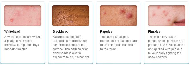 learn about the different types of acne and causes of acne, Human Body