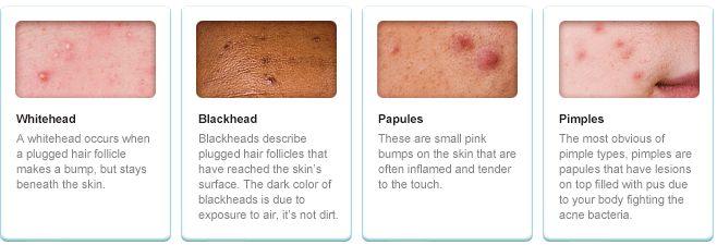 how to kill p acne bacteria