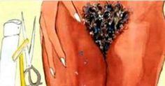 Generalmente, a todas nos resulta incomodo la depilación con cera, el uso de la maquinita de afeitar o las rasuradoras para eliminar el vello no deseado en nuestras partes intimas. Anuncios Pero hoy, te hablaremos de una técnica muy efectiva y que es 100% natural. No causa ningún efecto negativo y podrás eliminar el molesto …