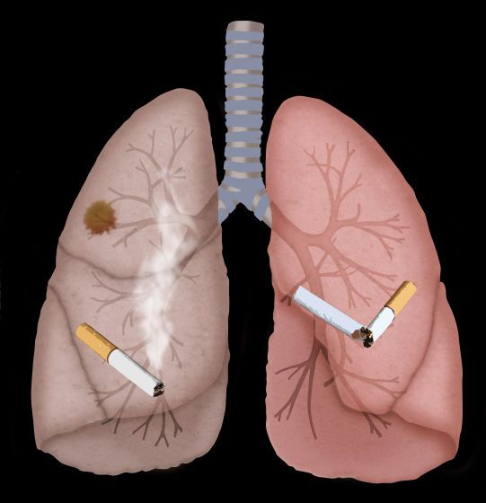 image #002ahy15 An illustration of a cancerous smoking lung (left) and a healthy non-smoking lung (right).  Lung cancer is a disease caused mainly by cigarette smoking.  Lung cancer damages the shape of the lungs, affecting their ability to inhale and exhale air. Lung cancer can be fatal. #cancerdupoumon #cancer #poumon #dessin