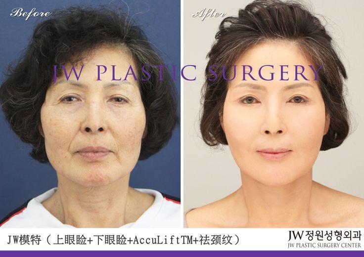 上下眼睑下垂矫正手术,祛皱纹拉皮面部年轻化手术让这位来自美国的73岁韩裔奶奶变得年轻漂亮,这就是JW整形医院的意义所在。