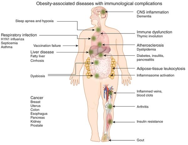 "La Obesidad afecta tu sistema inmunológico, tus ""defensas""...    #obesity #obesidad Immunological complications of obesity Nature Immunology 13, 707–712 (2012)"