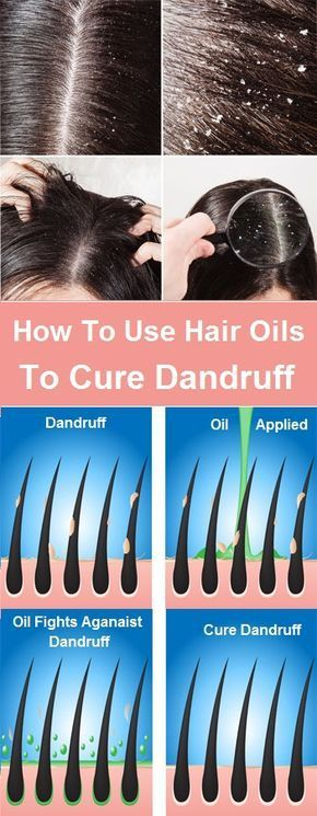 How To Use Essential Oils To Cure Dandruff – Works Best
