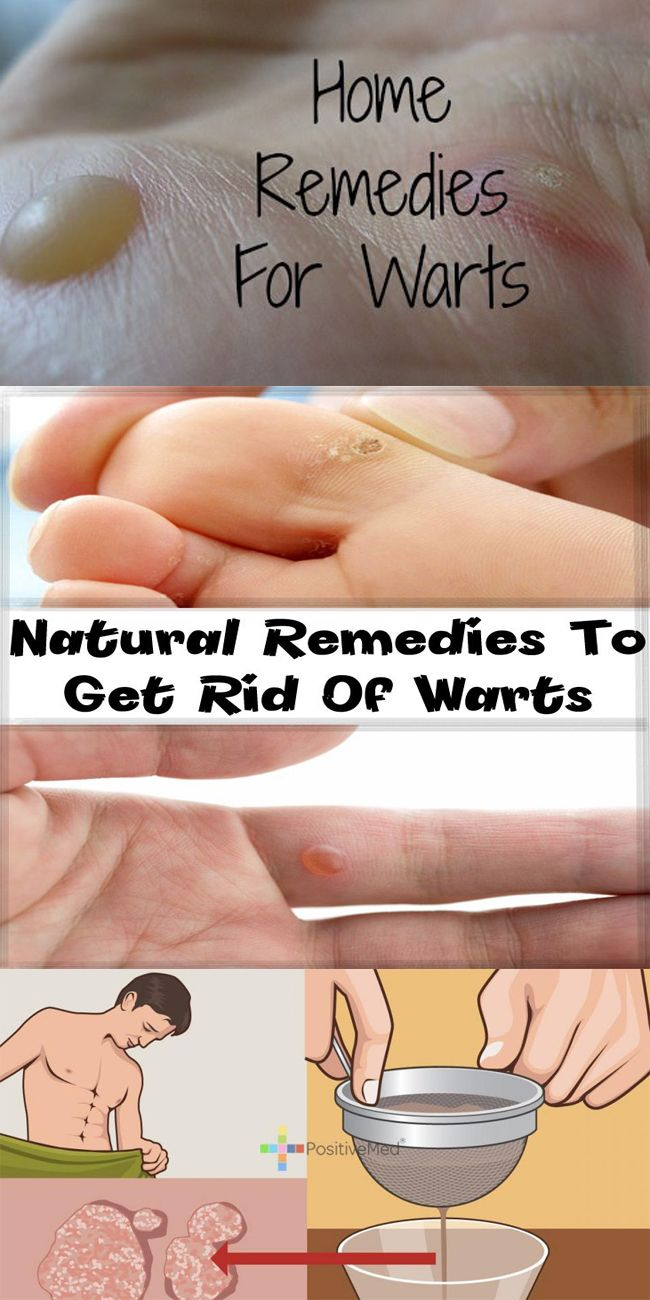 Home Remedies to Get Rid of Warts Naturally Fast (Permanently)!