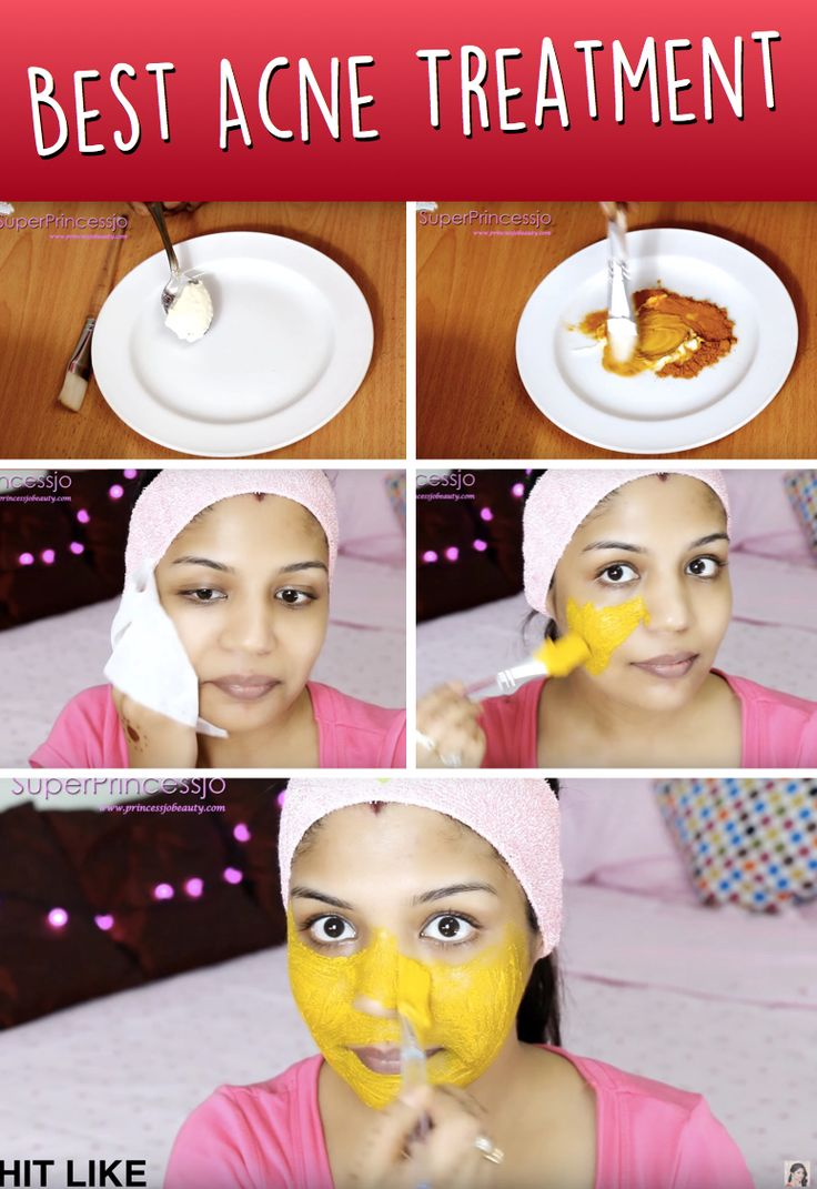 Do It Yourself Gesichtsmaske gegen Akne