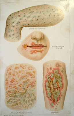 Anonymous Works: A Few 19th Century Medical Illustrations. I have chosen this image because one definition of abjection is the release of spores from a fungus.