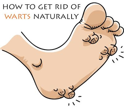 how to get rid of warts without medicine