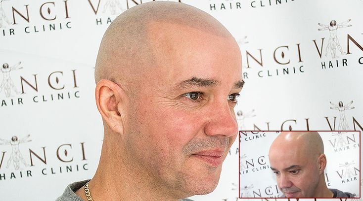 One of the most exciting hair restoration treatments offered by Vinci Hair Clinic in Holland is our Micro Scalp Pigmentation MSP.  Many hair loss sufferers looking for a permanent and non-invasive solution to their condition have already benefited from our MSP treatment and we look forward to helping many more through our Vinci scalp pigmentation clinic in Holland. #hairrestoration #alopecia #balding #hairtattoo #micropigmentation #pigmentation #croppedhair #holland #amsterdam