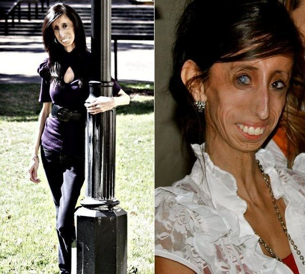 Skinniest Person In The World - Lizzie Velasquez -6102