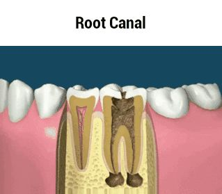 Root Canal GIF http://tmiky.com/pinterest