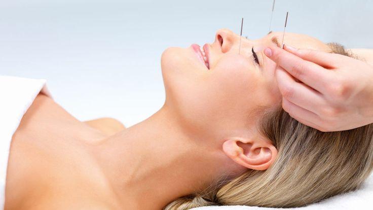 Zbavte se vrásek: Akupunktura místo botoxu - Žena.cz - magazín pro ženy