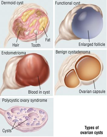 Cysts Guide: Causes, Symptoms and Treatment Options