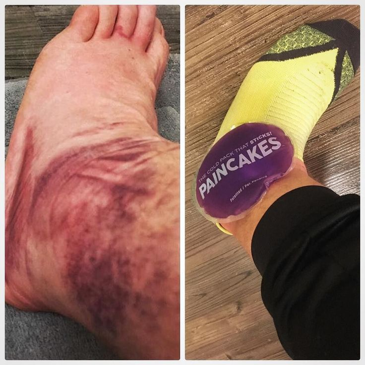 This is @jcal14's ankle. Back in April he sprained it really really badly. His foot was purple for weeks.  @jcal14 like me is an avid runner. He was pretty bummed about the severe sprain and it knocked him out of the run game for about 10 weeks. He's back to running now but his ankle still swells a bit when he runs. Enter @pain.cakes. They are the first stickable ice pack and they stay really cold! He can stick it on his ankle and go about his post run day!  @pain.cakes are reusable and…