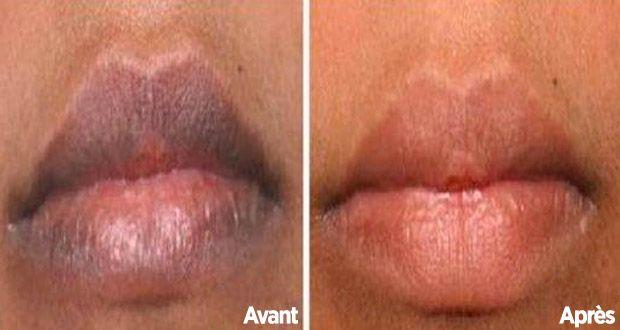 Comment éclaircir naturellement les lèvres foncées ? Voici une astuce surprenante !