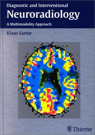 Diagnostic and Interventional Neuroradiology
