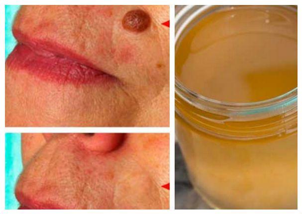 Las verrugas son una alteración de la piel causada por el virus del papiloma humano (VPH), son inofensivas, pero por su apariencia resultan muy desagradables y antiestéticas para quienes las padecen. Este problema suele aparecer en los senos, las axilas, el cuello, los párpados, las manos y los pies. Rara vez son dolorosas, pero en …