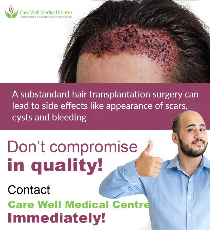 Do You Know In 2020 Hair Transplant Hair Transplant Surgery Aesthetic Dermatology
