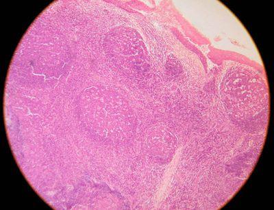 31 best Histology - Cerebellum images on Pinterest | Anatomy ...