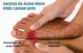 Resultado de imagen de acido urico gota