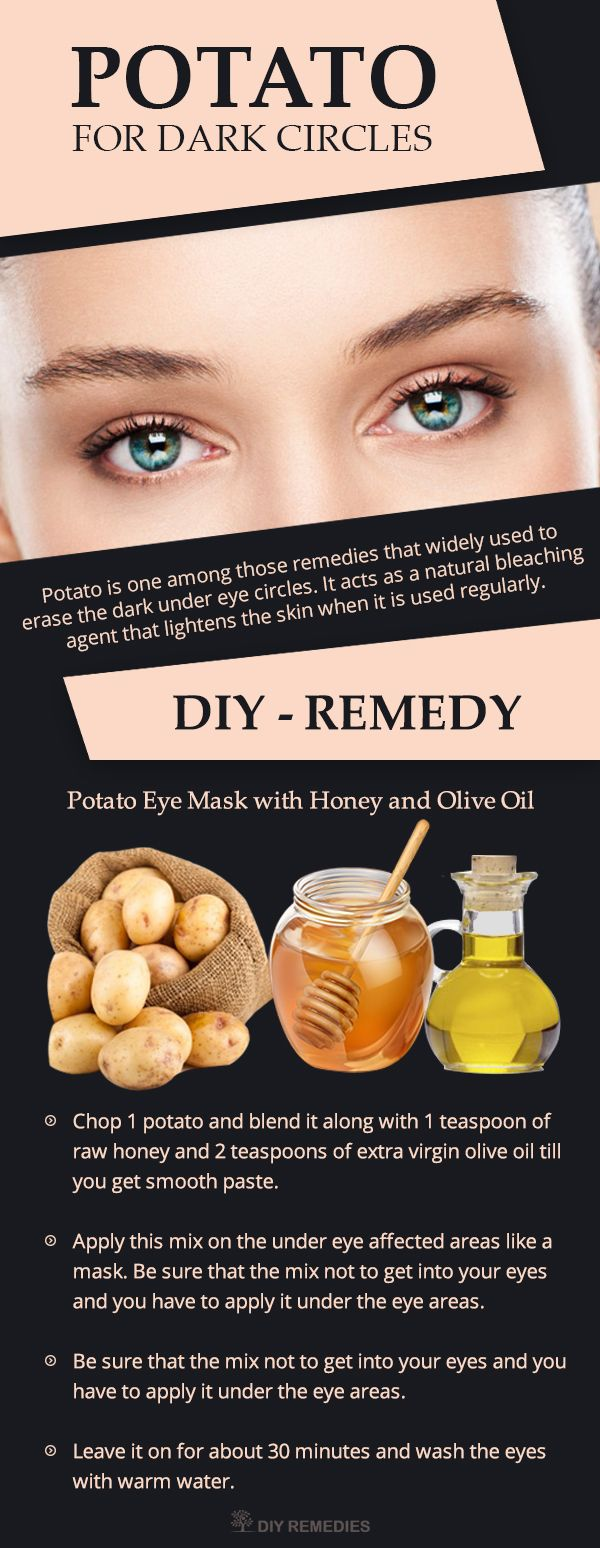 Potato simple home remedy for dark circles under eyes, Potato consists of natural bleaching agents, which will help to lighten the dark circles and remove the puffiness near the eyes.