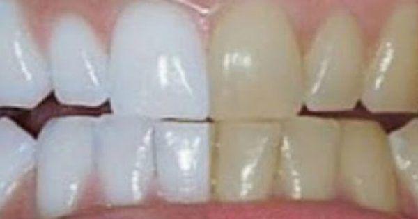 Ένα από τα πιο αντιαισθητικά πράγματα στον κόσμος είναι τα κίτρινα δόντια Μπορεί να πιστεύετε ότι πέρα από τακτές επισκέψεις στον οδοντίατρο και πέρα από ε