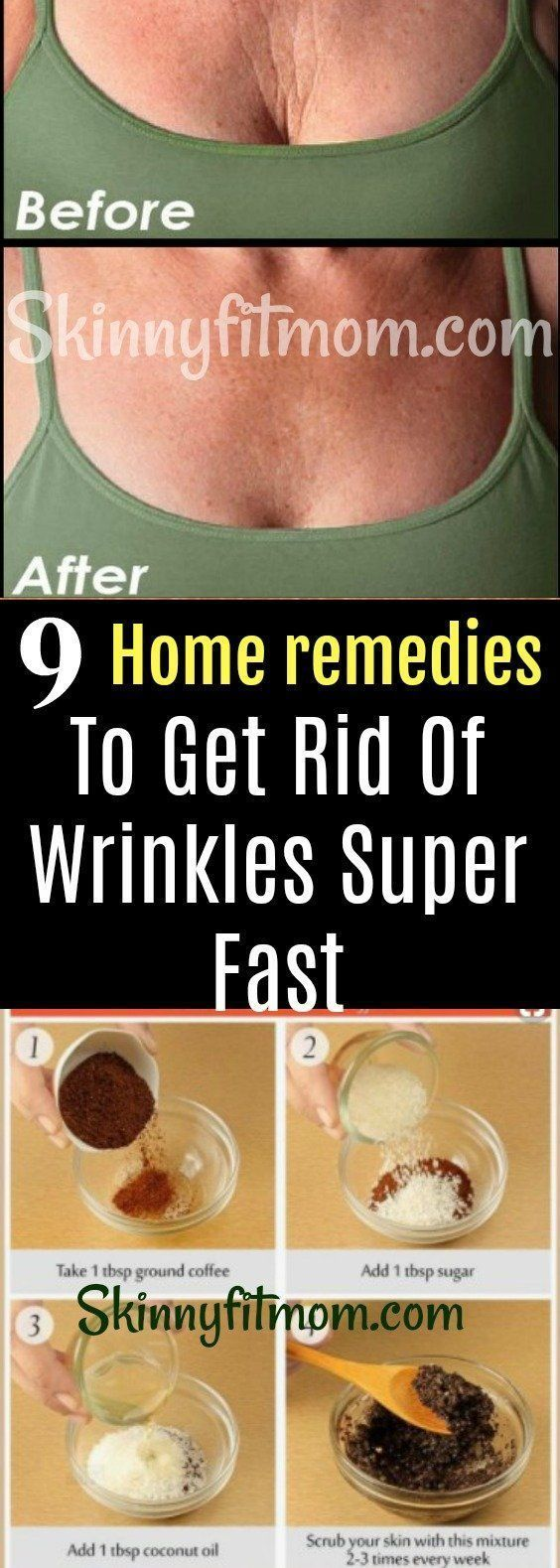 9 Home Remedies For Anti-Aging and To Help Make Wrinkles Around Your Face, Mouth And Eyes Disappear Super Fast! Tutorials And Step By Step Skin Care Routines. #AntiAgingTreatmentsSkinCare