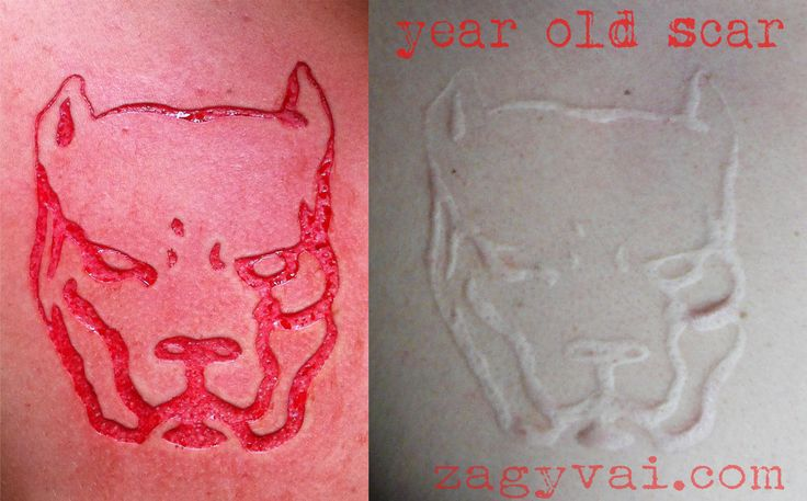 healed scarification with skin removal
