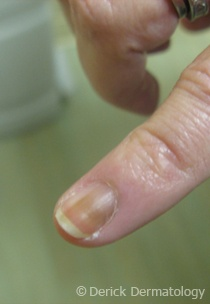 Melanoma of the nail bed.  You'd be surprised the places you can get skin cancer.