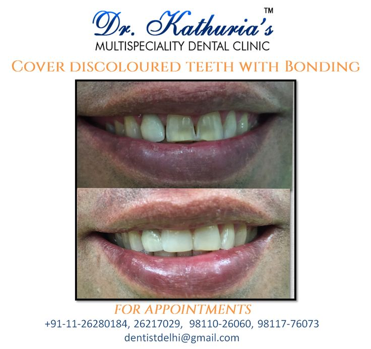 Cover your discoloured teeth with conservative #Bonding procedure for a better #smile.  #SmileMakeover #DelhiDental