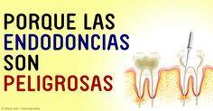 Los dientes tratados con endodoncia pueden causar directamente numerosas enfermedades, como meningitis, neumonía y anemia. http://articulos.mercola.com/sitios/articulos/archivo/2015/08/25/procedimiento-de-endodoncia.aspx