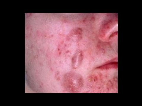 Cystic Acne, Pimples And Blackheads Extraction Acne Treatment On Face!!! part 18 Cystic Acne, Pimples And Blackheads Extraction Acne Treatment On Face!!! part 18 Cystic Acne, Pimples And Blackheads Extraction Acne Treatment On Face!!! part 18 Thanks For Watching :Cystic Acne, Pimples And...  https://www.crazytech.eu.org/cystic-acne-pimples-and-blackheads-extraction-acne-treatment-on-face-part-18-2/
