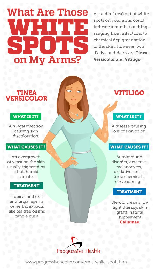 Those White Spots On Your Arms Can Be Caused By Fungal Infection Or Vitiligo Read On To Find Out How To Differentiate T In 2020 Vitiligo Skin Spots Vitiligo Treatment