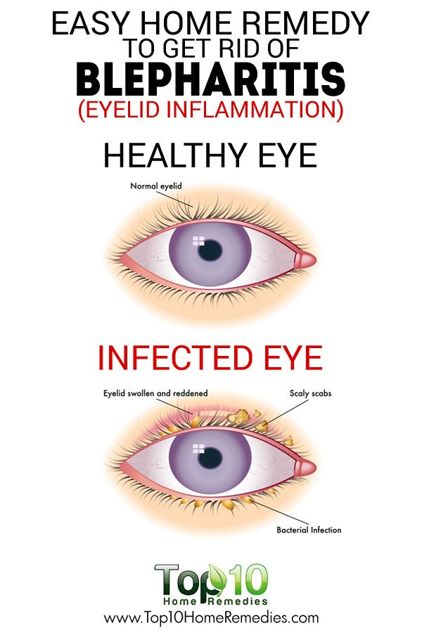Home Remedies For Blepharitis Eyelid Inflammation Best