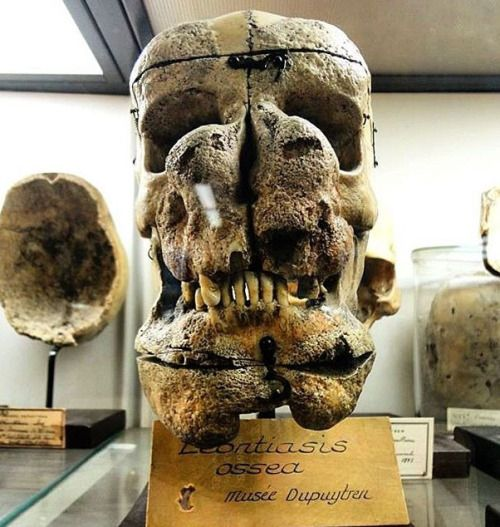 Skull displaying Leiontiasis Ossea at the Musée Dupuytren in Paris. Leontiasis Ossea, also known as leontiasis, lion face or Lion Face Syndrome, is a rare medical condition characterized by an overgrowth of the facial and cranial bones. Leontiasis Ossea has no diagnostic significance. It is only a description of a symptom of bone disease with a broad variability. Photo credit: bidulx