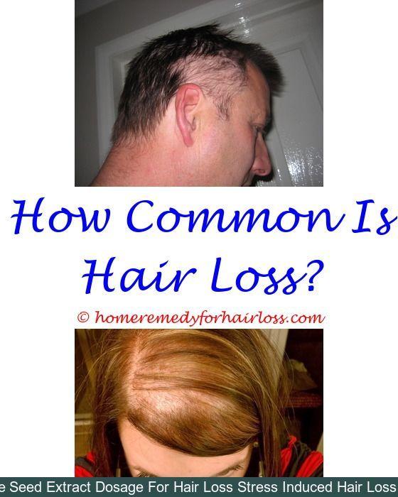 Hair Loss dandruff hair loss - hair loss after menopause