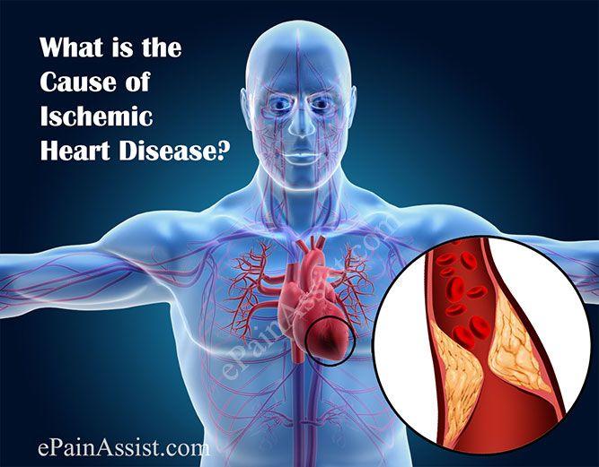 Ischemic Heart Disease: Causes, Signs, Symptoms, Diagnosis #IschemicHeartDisease #ChestPain #heart  #heartattack #HeartFailure #hearthealth #epainassist Read: http://www.epainassist.com/chest-pain/heart/ischemic-heart-disease