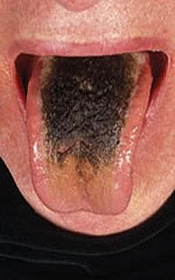 You may have a condition called Black Hairy Tongue without you knowing. Poor oral hygiene, tobacco, antibiotics, Pepto Bismol, and teeth-whitening peroxide mouthwashes can cause this. A tongue scraper won't help. Get rid of a black tongue easily.