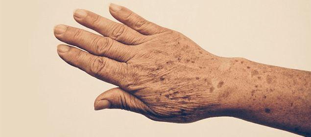 Cómo atenuar las manchas de la piel de forma natural   Soluciones Caseras - Remedios Naturales y Caseros