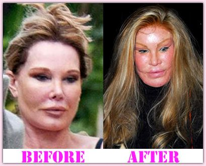 Cat Lady Plastic Surgery Before And After Cat Lady Plastic Surgery Catladyplasticsurgery #Catlady #houshow