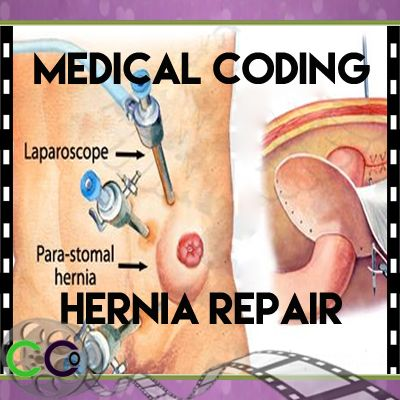 63 best medical coding class images on pinterest medical coding medical coding for hernia repair wed like to do with these answer sheets fandeluxe Images