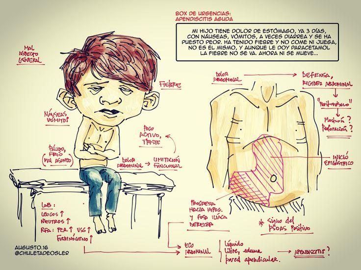 Apendicitis. Box urgencias. Chuleta de Osler