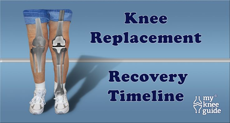 Pain Management for Total Knee Replacement