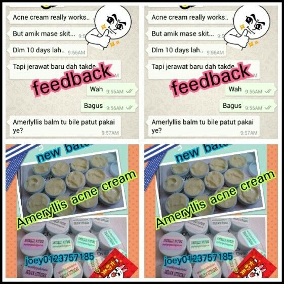 Ameryllis acne cream feedback again 10 days acne reduce and no more new acne break out from selangor customer feedback Yeahhhh price so affordable only rm30 west east rm40 free pos laju. What's a great offer.Interested? Pm me now Joey wechatjoey/line/instagram joey2383 /whatsapp0123757185 www.Joeyshoppingmalls.blogspot.com