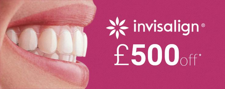 #Privatedentists in Wimpole Street are offering up to £500 discount on complete #Invislign treatment at their clinic Wimpole Dental.... https://www.facebook.com/cosmeticdentistryinwimpolestreet/posts/1156869307676787
