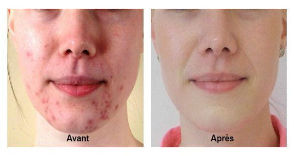 Faites disparaitre l'acné et les boutons pour toujours en 2 semaines