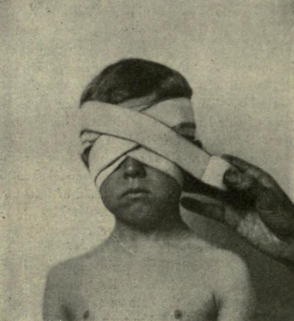 From A text-book of minor surgery, Edward M. Foote, 1909